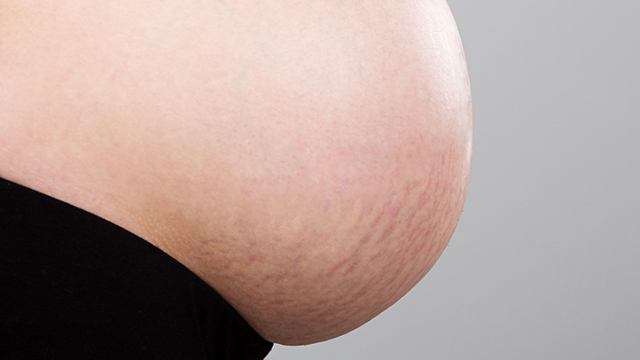 Baby Toddler Child Growth Pregnancy Stretch Marks Causes Prevention And Care