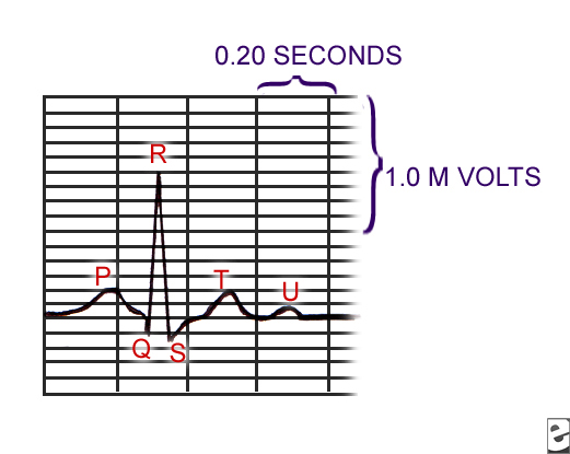 What is an Electrocardiogram (ECG, EKG)? - Basic P&l