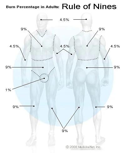 Burn Percentage in Adults Rule of Nines Chart