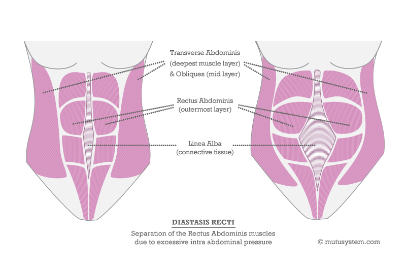 The Hole In Your Post-Baby Tummy How To Test For and Fix Diastasis