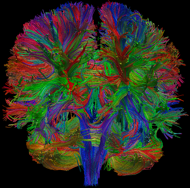 Running Clock 3d Wallpaper For Desktop Personalized Brain Mapping Diffusion Tensor Imaging