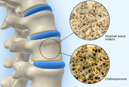 Osteopenia Treatment, Symptoms, Causes, Diet  Medications