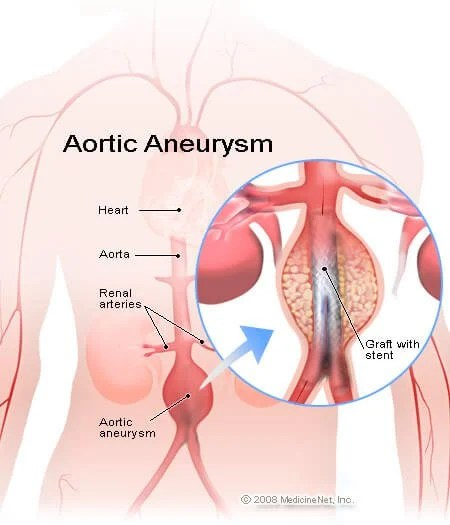 Abdominal Aortic Aneurysm Symptoms, Rupture  Survival Rate