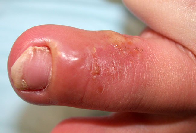 Herpes Whitlow And Rheumotoid Arthritis 1