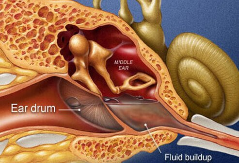 Fluid buildup may distort sound or block its passage to the inner ear 2