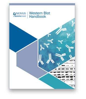 Western Blot Handbook Novus Biologicals
