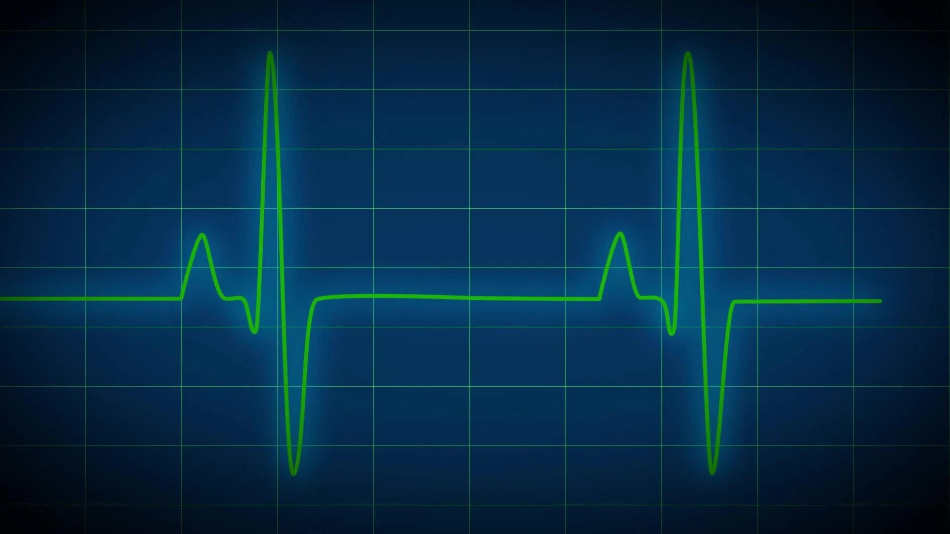 Animated Butterfly Wallpaper Ekg Heart Monitor Blue Hd Amp 4k Stock Footage 12418933