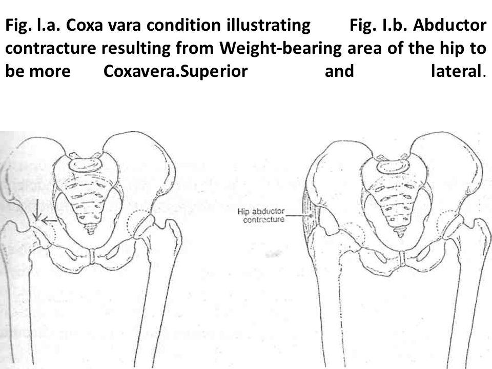 Hip deformities COXA VARA Coxa vara is a progressive disorder of
