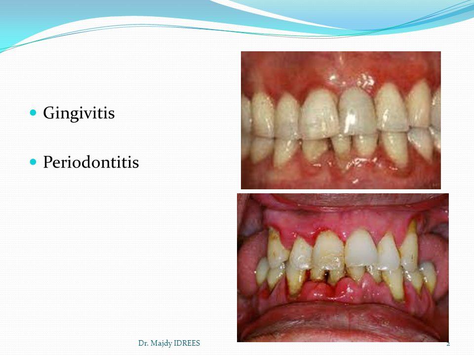 Dr Majdy IDREES 1 Gingivitis Periodontitis 2Dr Majdy IDREES