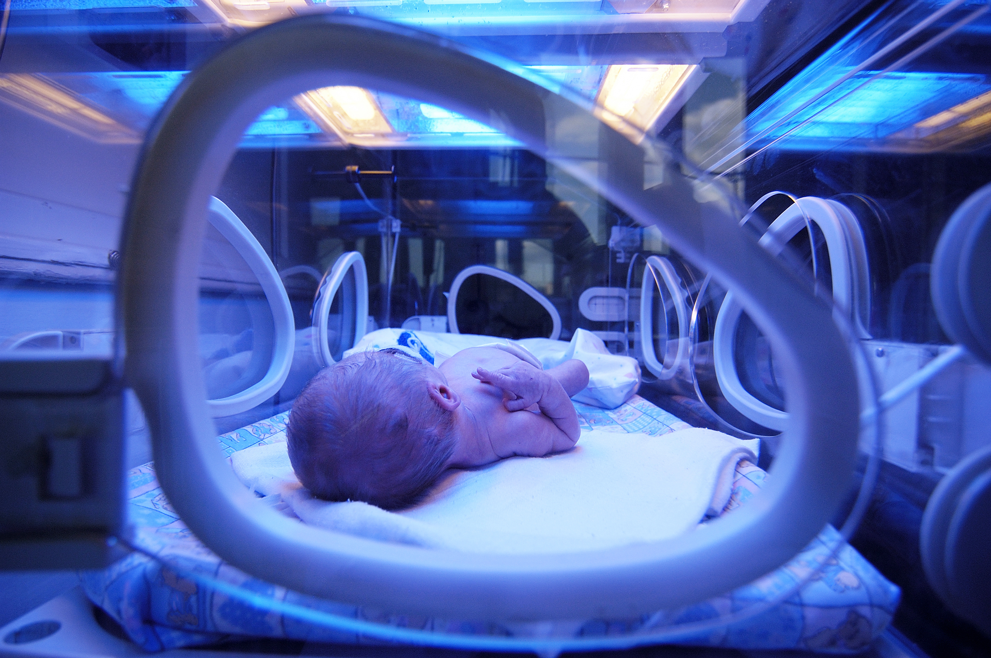 Newborn Babies Jaundice Treatment Jaundice In Newborns Could Be An Evolutionary Safeguard
