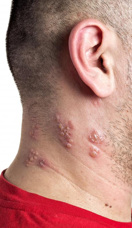 How Long Does Acyclovir Take To Work For Shingles 2