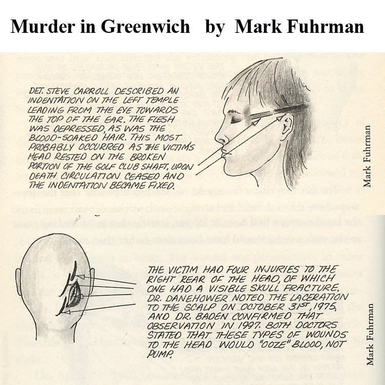 Martha Moxleyu0027s fatal head injuries, diagrams by Mark Fuhrman - forensic report