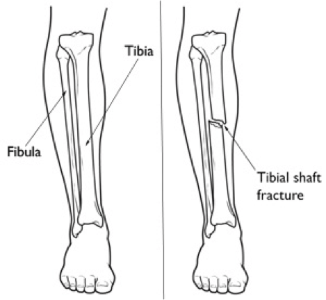 broken leg diagram