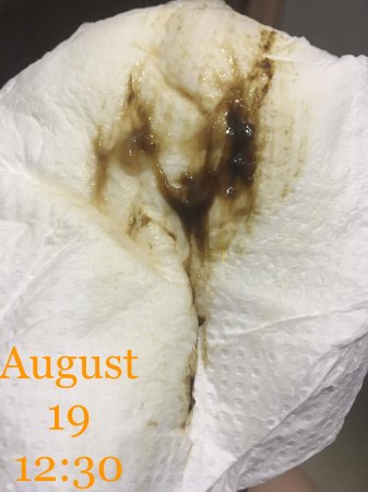 Dark brown mucous discharge 19 weeks - BabyCenter