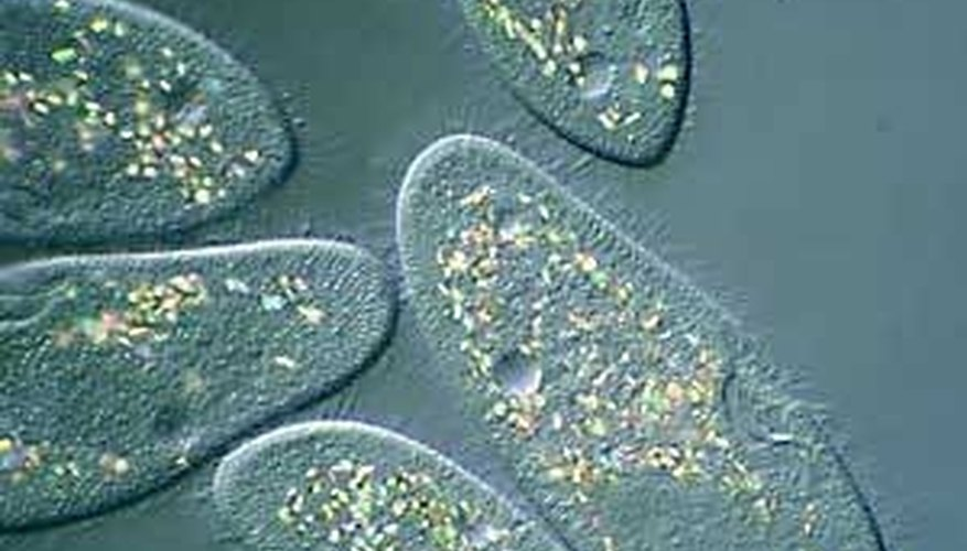 How Do Protists Reproduce? Sciencing - protista examples
