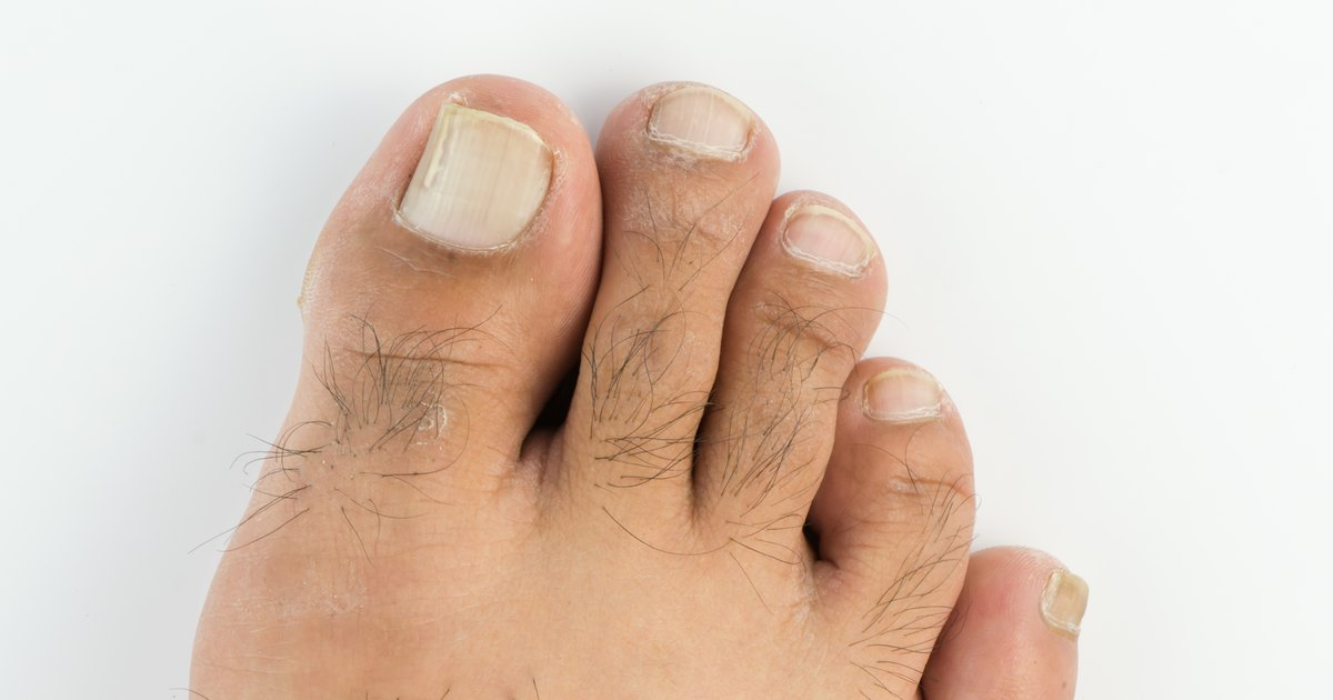 How To Get Rid Of Dry Feet Ugly Toenails Livestrongcom