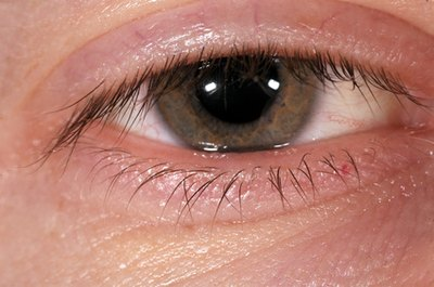 What Are The Causes Of Swollen Eyes Face