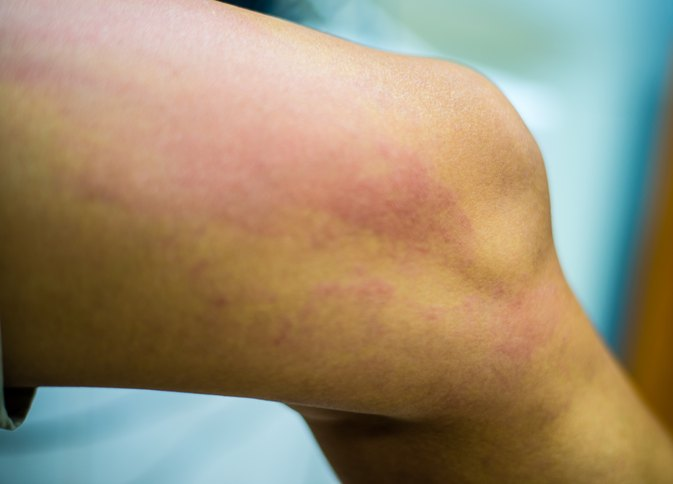 Can A Food Allergy Cause Rashes On Your Buttocks Inner