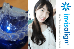 Invisalign隱適美透明牙套-矯正前後,三年來的牙齒變化 | Overview of My Invisalign Treatment-Before & After (3 Years)