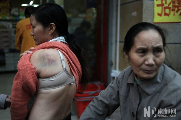 The bruise left on Jiang's back after she was beaten.