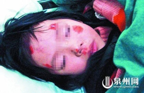 Xiaoya, the 3-year-old Chinese girl whose father suddenly began beating her inside a taxi and then tossed her out of the taxi through a broken window.