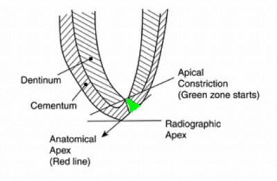 endodontics electronic apex locators