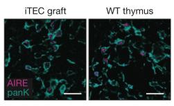 Pormenor da marcação intracitoplasmática da AIRE no garfo (esquerda) e no órgão WT (direita)