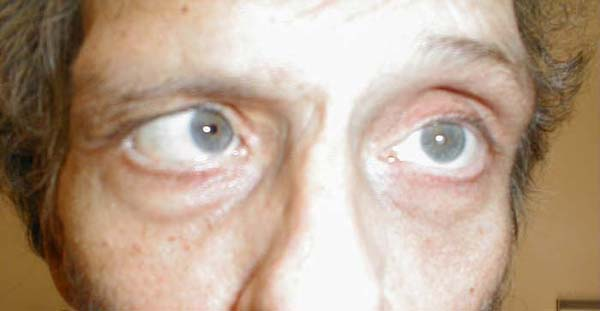 Sixth Left Cranial Nerve Palsy Left eye cannot move laterally