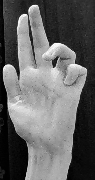 Claw hand\u201d due to ulnar nerve palsy \u2013 the patient cannot extend
