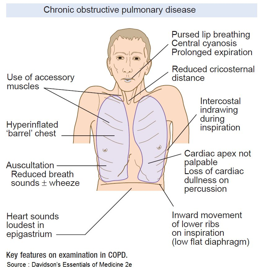 Key features on examination in COPD (Chronic obstructive pulmonary