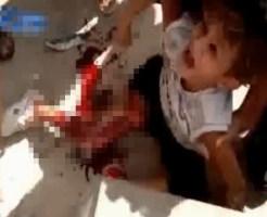 【グロ動画:事故】泣き叫ぶ少年・・・足がえぐれて骨が飛び出す・・・