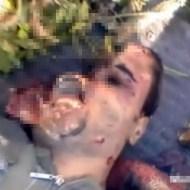 【グロ動画:死体】頭半分を綺麗に吹き飛ばされた男性・・・