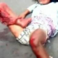 【グロ:事故】悶絶してる女性・・・身体を動かすたびに足が皮一枚でぶらぶら・・・