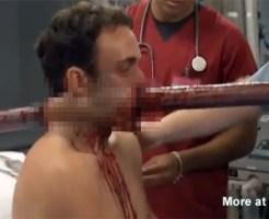 【グロ:治療】なぜ生きてる!?極太ポールが顔面に突き刺さった男性