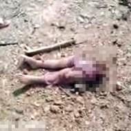 【閲覧注意】シリア内紛に巻き込まれた幼い子供・・・下半身が道端に・・・