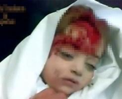 【グロ動画】軍の砲撃で頭を潰され殺された赤ん坊