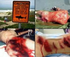 【閲覧注意】人食い鮫に襲われた人たちまとめ