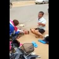 【激グロ】事故で目の前で息子の頭が轢かれたらこうなる・・・
