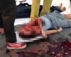 【グロ動画】カップルがバイク事故・・・彼女の顔が・・・