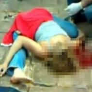 【グロ注意】彼女が事故で背骨が折れポッキリ折りたたまれた・・・