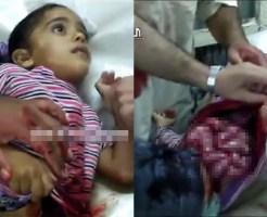 【グロ動画】幼い少女が事故を起こし腸が飛び出したまま搬送・・・