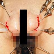 【エログロ】マ○コを針で貫通!過激すぎるSM画像まとめ 【画像12枚】