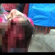【超閲覧注意】可愛い幼女の頭が割れ・・・中身がでてしまった。。。