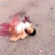 【グロ動画】自爆テロしたら上半身だけで生き残っちゃった・・・