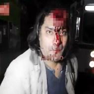 【自殺映像】壁に頭を叩き付けて自殺してる男にインタビューしてみた・・・
