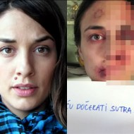 【虐待動画】美女の顔がDVによって無茶苦茶になっていく写真集が怖い・・・