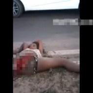 【グロ動画】下半身を引き千切られても生き残ってしまった女性・・・