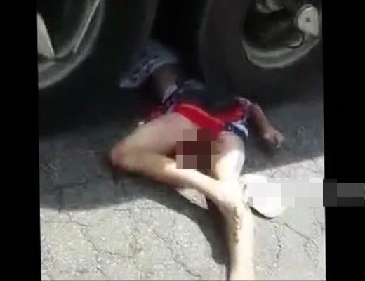 【グロ注意】事故死した18歳少女のマ●コからいろいろ出てるんだが・・・