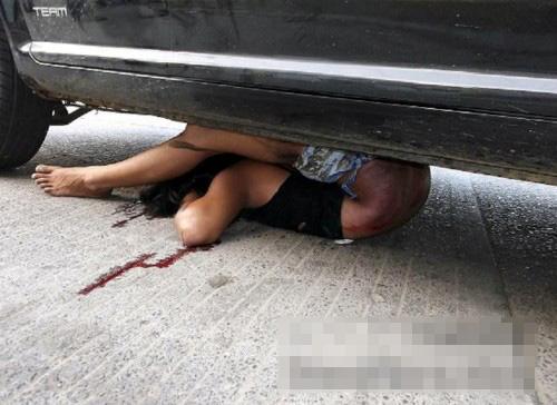 【死体画像】おしりが背中にくっつく軟体な女だと思ったら遺体だった・・・ ※グロ注意
