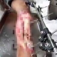 【閲覧注意】骨バキバキ肉削ぎ落ちた脚修復できるか試してみた ※グ●動画